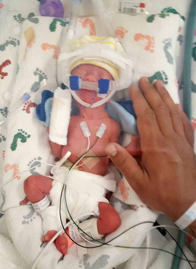 Rachelle S Birth Story Hellp Syndrome And Born At 28